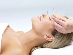 accupuncture headache relief vancouver